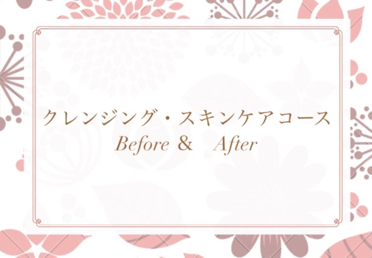 クレンジング・スキンケアコース Before& After