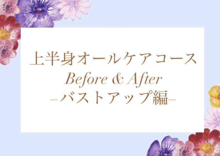バストアップ Before &  After