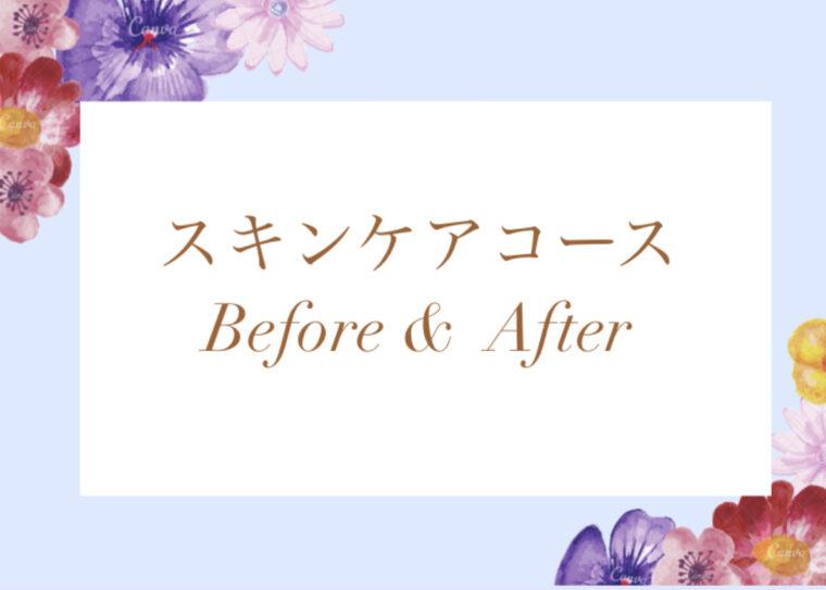スキンケアコース Before&  After