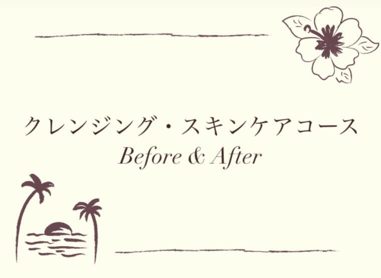 クレンジング・スキンケアコース Before & After